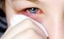Alergias são resultantes de combinações de substâncias