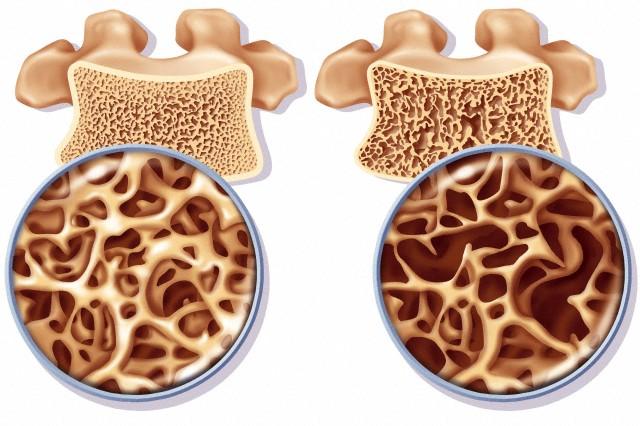 http://www.colegioweb.com.br/wp-content/uploads/2014/02/osteoporose2.jpg