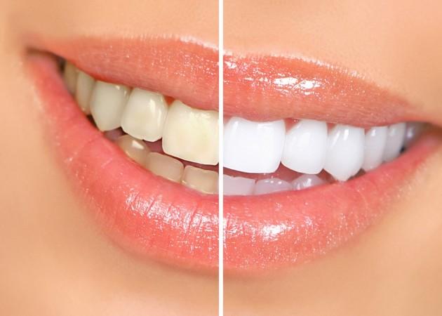 Clareamento Dentes