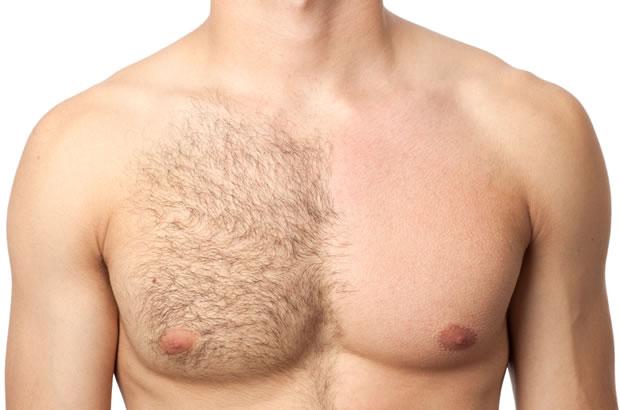 Como depilar-se sem prejudicar a pele