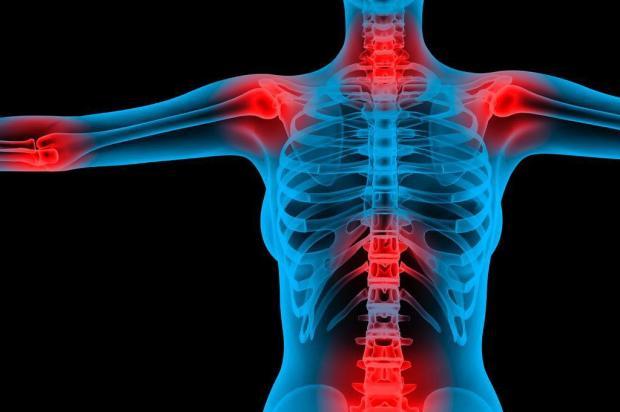 Dia Mundial da Fibromialgia Tratamento