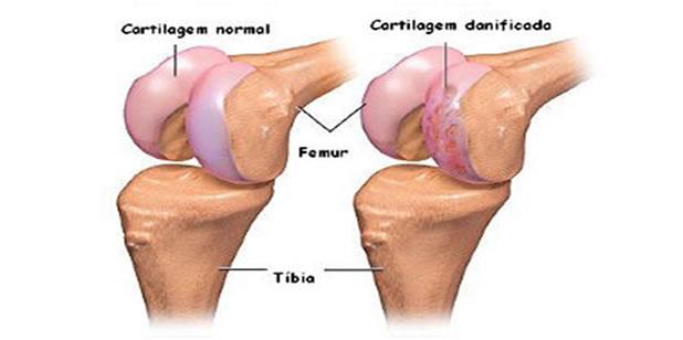 Como prevenir problemas cartilagem
