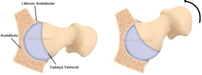 Como prevenir problemas de cartilagem