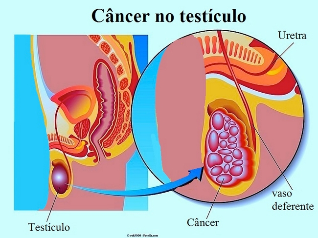 Cancer Testiculo