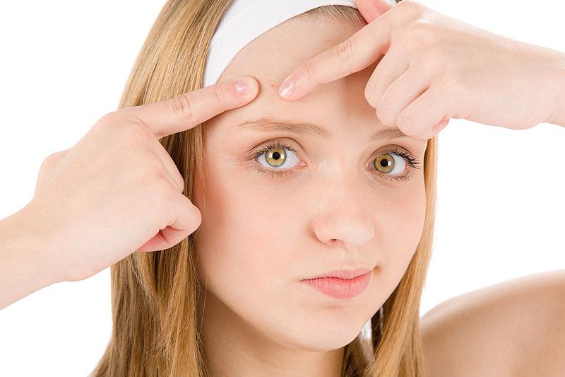 tratamentos de acne