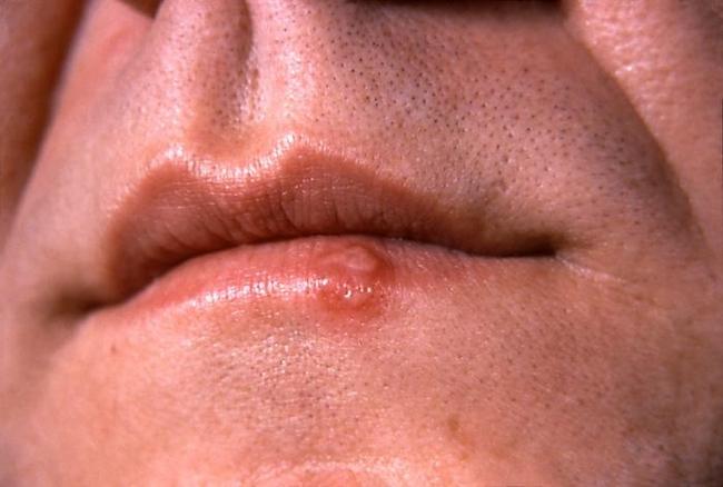 Bucal Herpes