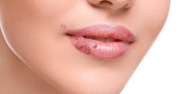 Sintomas da Herpes Mais Diversos Tipos