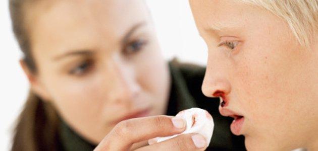 Por que temos sangramento nasal