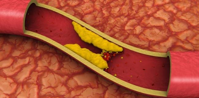 Mitos e verdades do colesterol