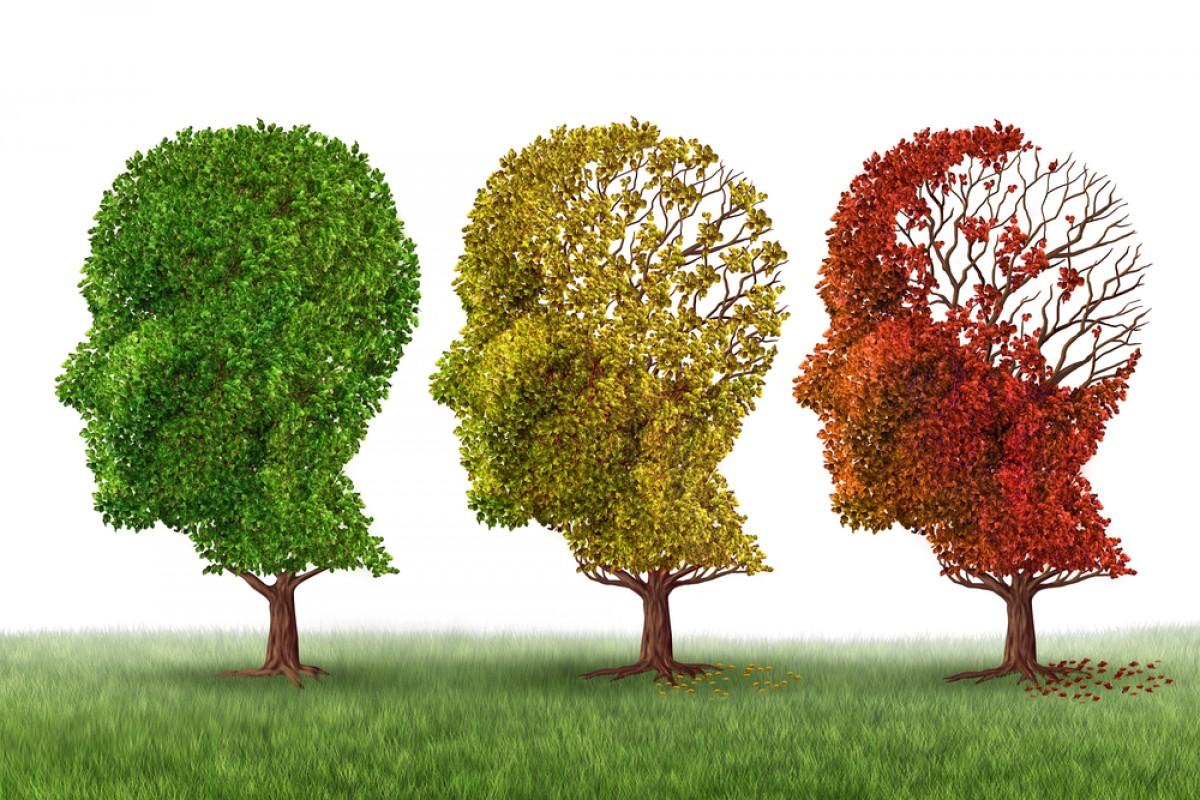 Resultado de imagem para mal de alzheimer